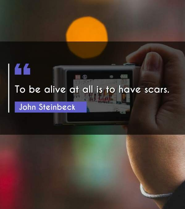 To be alive at all is to have scars.